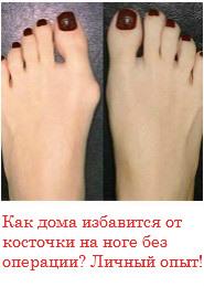 Крапивница: фото, симптомы и лечение