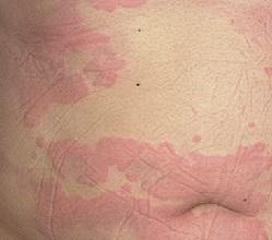 Аллергия крапивница фото