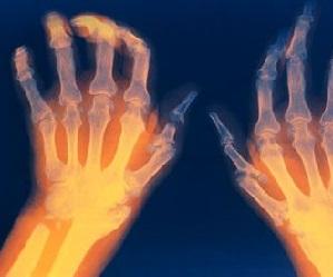 Лечение тазобедренных суставов таблетками