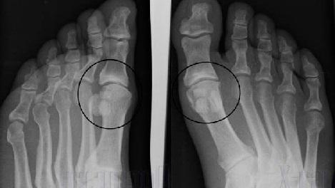 Фото артроза стопы на рентгеновском снимке.
