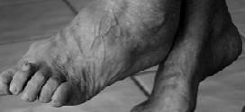 Артроз стопы — симптомы и лечение