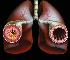 Бронхиальная астма 3