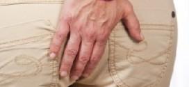 Геморрой — фото, симптомы и лечение