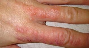 Дисгидротическая экзема на пальце