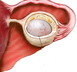 Киста яичника в менопаузе что делать и как лечить