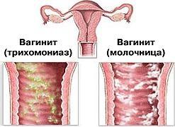 vulvovaginalniy-kandidoz-simptomi-lechenie