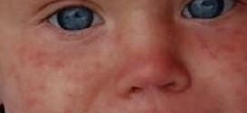 Краснуха у детей — симптомы и лечение, профилактика, фото