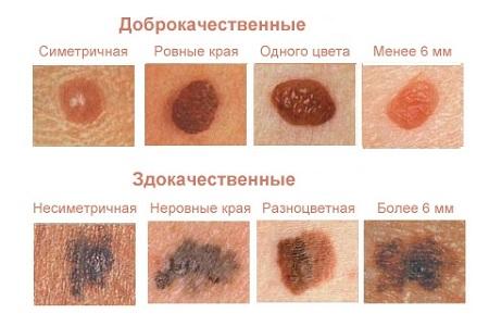 Красные родинки классификация
