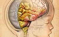Менингит — симптомы у взрослых и детей, лечение