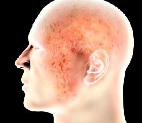 Рекомендуемые продукты при атопическом дерматите у ребенка