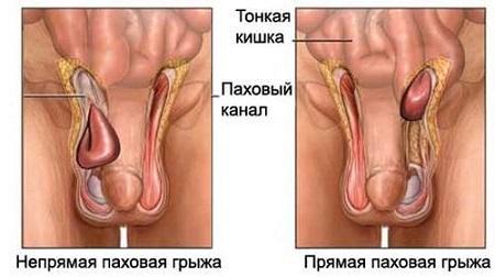 профилактическое лечение паразитов