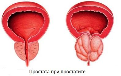 Геморрой и простатит как связаны эти болезни
