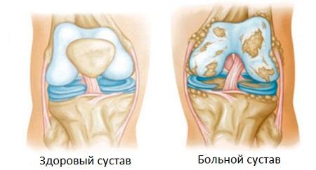 Реактивный артрит лечение