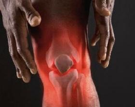 Реактивный артрит