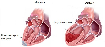 Сердечная астма причины