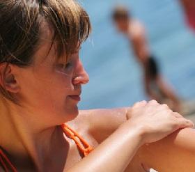 Солнечный ожог: лечение в домашних условиях, первая помощь