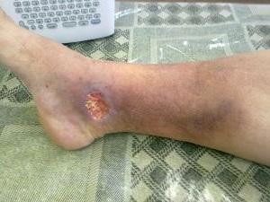 как лечить язву на ноге