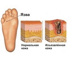Трофическая язва на ноге причины