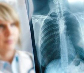 Туберкулёз лёгких лечение