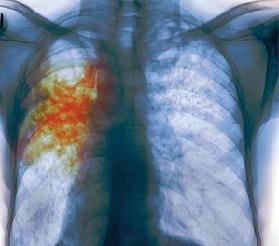 Туберкулёз лёгких причины
