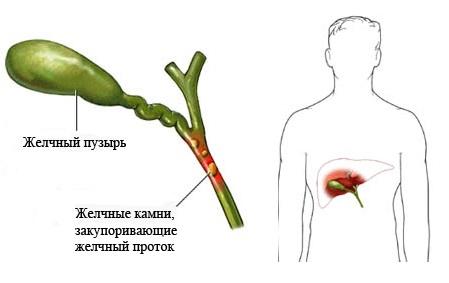 Холецистит симптомы