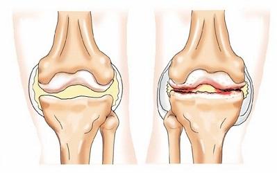 Разрушение коленного сустава лечение