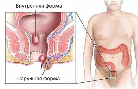 Геморрой фото лечение в домашних условиях
