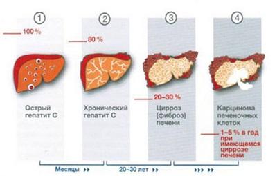 Вирусный гепатит симптомы и лечение