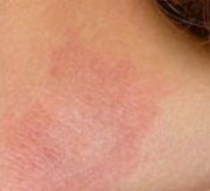 Аллергический дерматит лечение