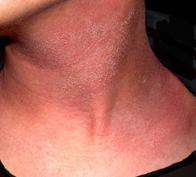 Аллергический дерматит фото у взрослых