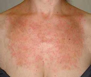 Аллергия на солнце: фото, симптомы и лечение