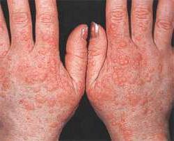 Аллергия на холод симптомы