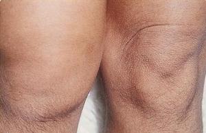 Артрит коленного
