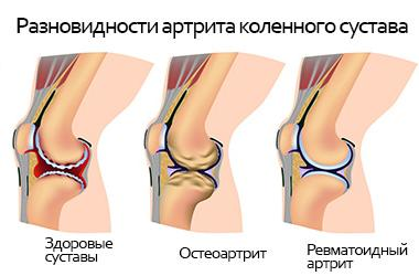 Жидкость для коленного сустава