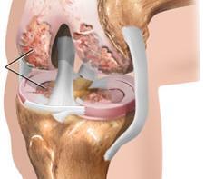Артрит коленного сустава симптомы