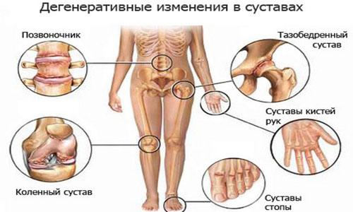 Артроз симптомы
