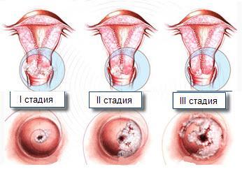 Дисплазия шейки матки симптомы