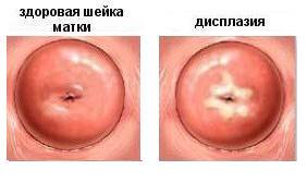 Дисплазия шейки матки фото