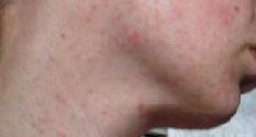 Мелкая сыпь на лице фото