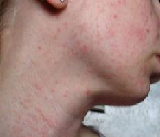 почему кожа на лице на всем теле сухая