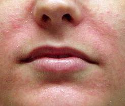 Как смотрится себорейный дерматит