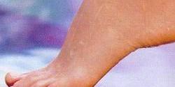 Экзема на ногах — фото, симптомы и лечение