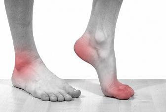 Артроз коленного сустава лекарство аркс