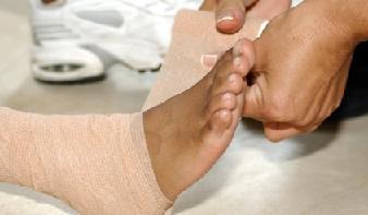 Артроз голеностопного сустава ФОТО