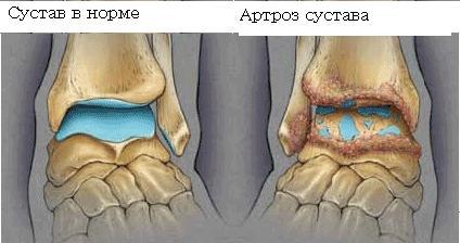 Артроз голеностопного сустава симптомы