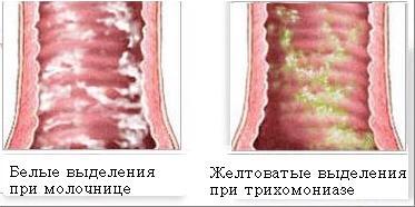 Женское заболевание молочница