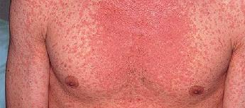 Скарлатина у взрослых симптомы