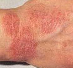 аллергия зуд на руках чем лечить