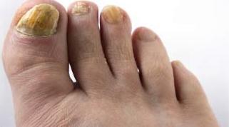 грибок ногтей на ногах фото 2