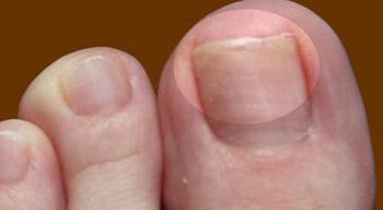 Эффективные препараты от грибка ногтей на ногах